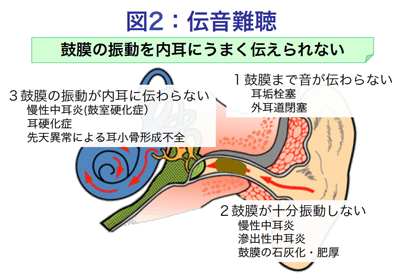 伝音難聴は鼓膜の振動を内耳にうまく伝えられないタイプの難聴です。1.鼓膜まで音が伝わらない=耳垢栓塞、外耳道閉塞 2.鼓膜が十分振動しない慢性中耳炎、滲出性中耳炎、鼓膜の石灰化・肥厚 3.鼓膜の振動が内耳に伝わらない=慢性中耳炎(鼓室硬化症)、耳硬化症、先天異常による自称骨形成不全